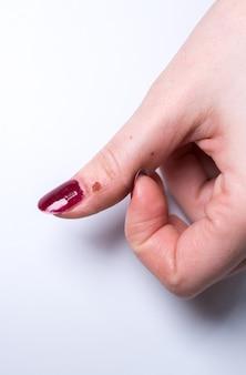 Marcas de remoção a laser de verruga no dedo. doença de pele contagiosa na mão da mulher. foto de tratamento médico.