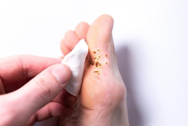 Marcas de remoção de verruga a laser. doença de pele contagiosa a pé. homem segurando a almofada de algodão no dedo do pé. foto de tratamento médico.