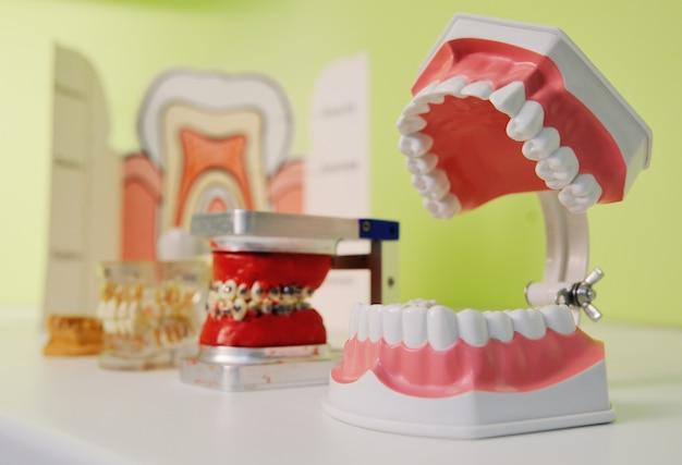 Maxilar artificial em cima da mesa em close-up do consultório do dentista