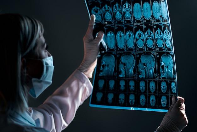 Médica com uma máscara examina um raio-x ou ressonância magnética de uma varredura do cérebro de pacientes isolada no preto.
