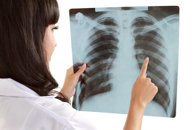 Médica, cuidadosamente, raio-x do paciente