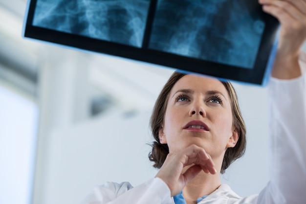 Médica examinar relatório de raio-x