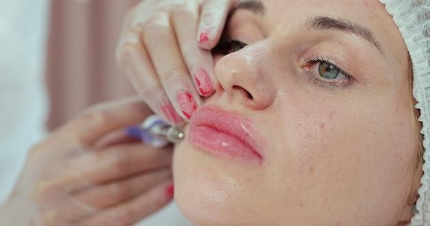 Médica, injetando ácido hialurônico nos lábios do paciente. procedimento para aumentar o volume dos lábios, correção da forma dos lábios.