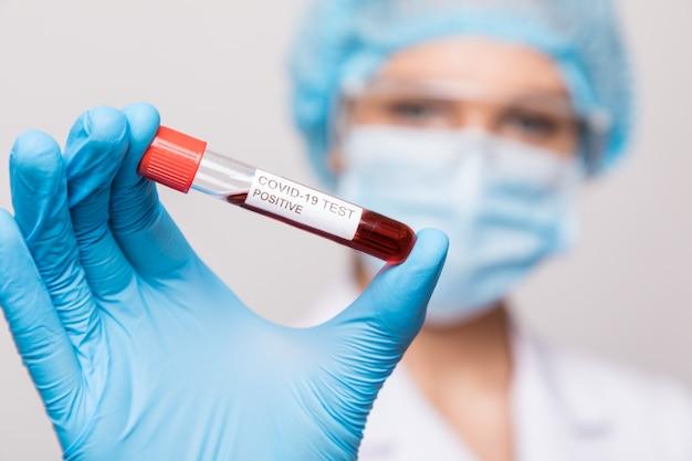 Médica, mantendo a amostra de sangue infectada com coronavírus. pandemia covid-19