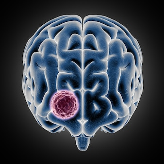 Médico 3d mostrando o cérebro com tumor crescendo