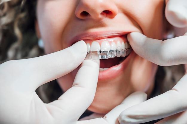 Médico, colocando um alinhador dental claro para a mulher paciente