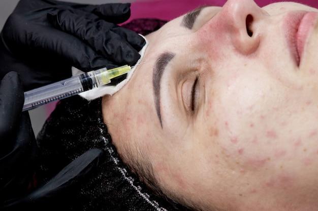 Médico cosmetologista está fazendo biorevitalização de múltiplas injeções com ácido hialurônico na pele do rosto de uma mulher, closeup. mulher no procedimento de injeção de mesoterapia.