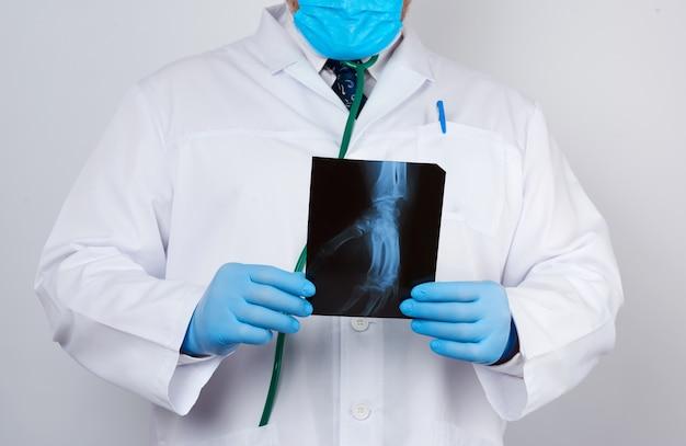 Médico de jaleco branco e luvas de látex azuis detém um raio-x