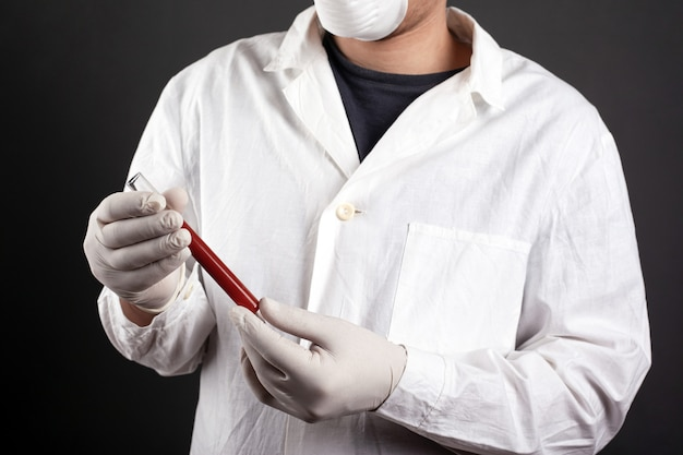 Médico de uniforme médico detém um tubo de ensaio com sangue nas mãos.
