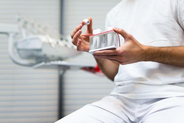 Médico dentista segurando modelo de implante dentário