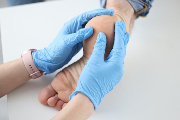 Médico dermatologista em luvas, examinando o close up do calcanhar dos pacientes. tratamento de calcanhares rachados