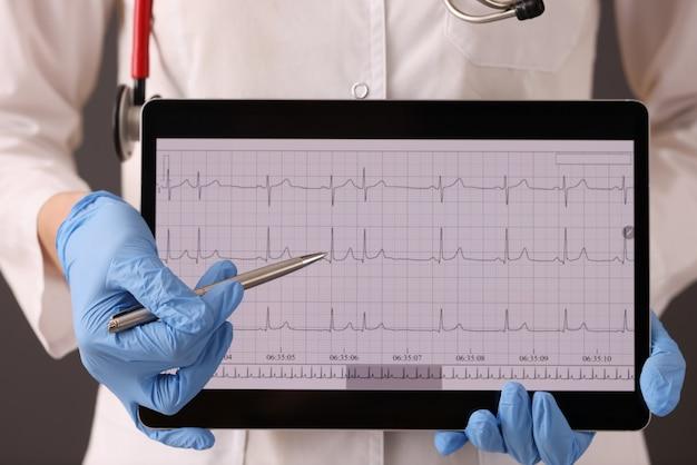 Médico em luvas de borracha, segurando o tablet digital com eletrocardiograma closeup. diagnóstico de ecg de ritmo