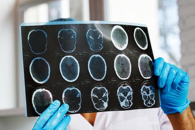 Médico examina ressonância magnética do cérebro de um paciente no hospital