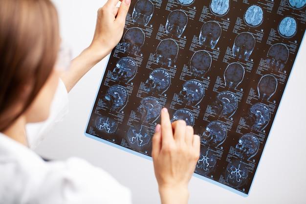 Médico examina uma imagem de ressonância magnética da cabeça do paciente