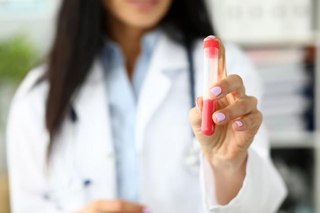 Médico feminino mão segurando o tubo de ensaio de plástico contendo líquido vermelho