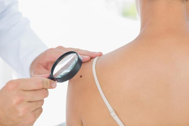 Médico que examina o melanoma na mulher
