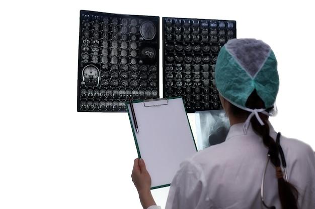 Médico segurando uma foto de um fluxo de trabalho de ressonância magnética do cérebro em um hospital de diagnóstico