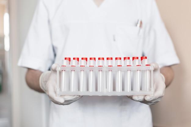 Médico tem nas mãos um estande com tubos de ensaio para análise de coronavírus. vírus covid-19. Foto Premium
