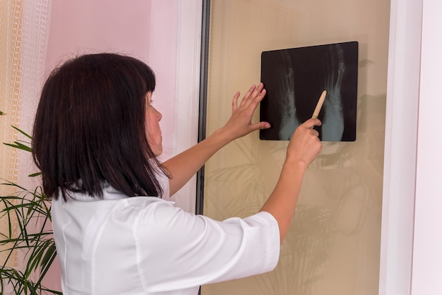 Médico traumatologista examina pacientes com raios-x e aponta com caneta