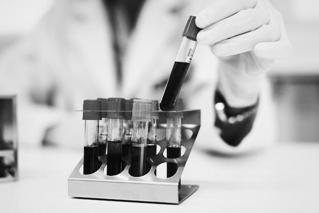 Médico verificando algumas amostras de sangue