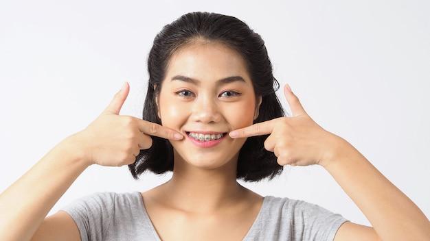 Menina adolescente de aparelho dentário sorrindo, olhando para uma câmera. dentes brancos com aparelho azul. cuidado dental. sorriso de mulher asiática com acessórios ortodônticos. odontologia estética, tratamento ortodôntico. tiro do estúdio.