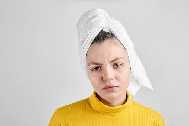 Menina após o spa na toalha branca com problema do período da puberdade da pele do problema da acne