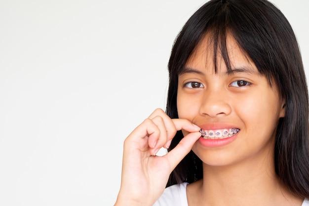 Menina com dentes de chaves sorrindo e feliz