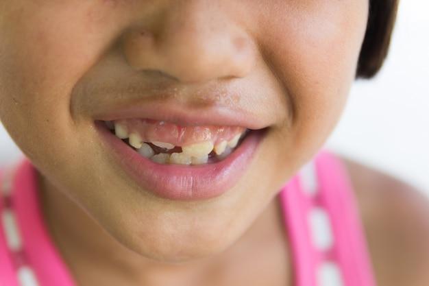 Menina com um dente quebrado e podre