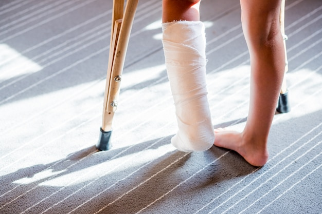 Menina com uma perna quebrada, atadura de gesso. tala do pé para tratamento de lesões de ossos quebrados. entorse de tornozelo depois de pular na cama elástica