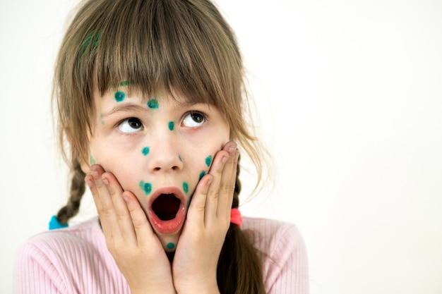 Menina criança coberta de erupções cutâneas verdes no rosto doente com vírus da varicela, sarampo ou rubéola.