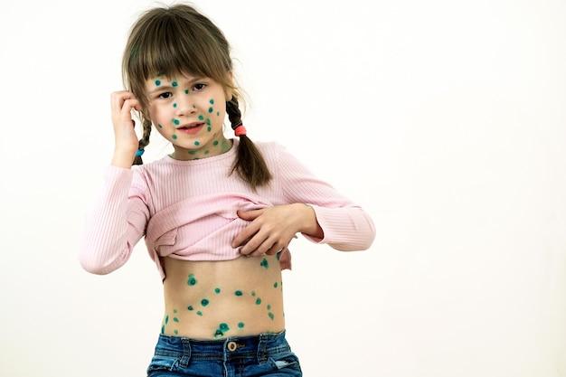 Menina criança coberta de erupções cutâneas verdes no rosto e estômago doente com vírus da varicela, sarampo ou rubéola.