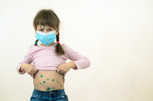 Menina criança com máscara médica protetora azul doente com vírus da varicela, sarampo ou rubéola e erupções cutâneas no corpo