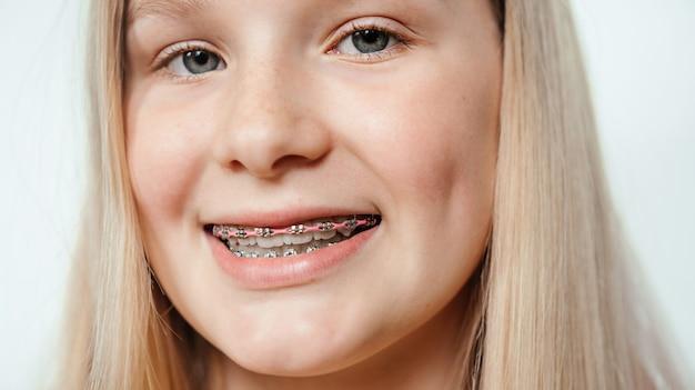 Menina loira sorridente com close-up de aparelho ortodôntico, tratamento ortodôntico e ortodôntico