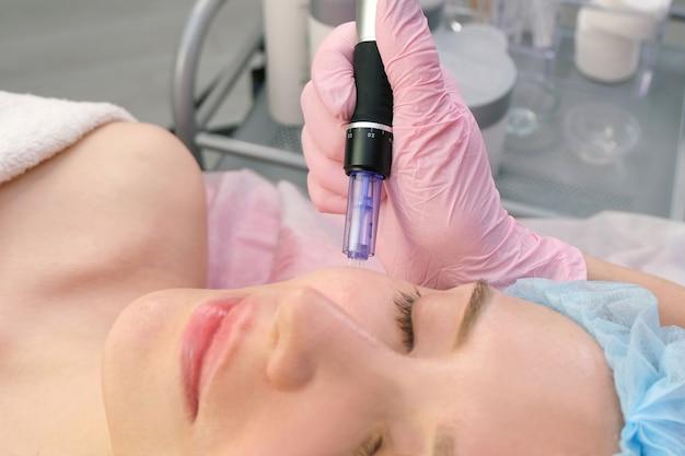 Mesoterapia com agulha. cosmetologista realiza mesoterapia com agulha no rosto de uma mulher. mulher bonita, recebendo tratamento de rejuvenescimento com microagulhamento. levantamento de agulha