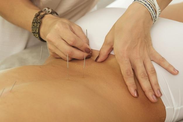 Mestre está injetando agulhas de aço durante o procedimento de terapia de acupuntura