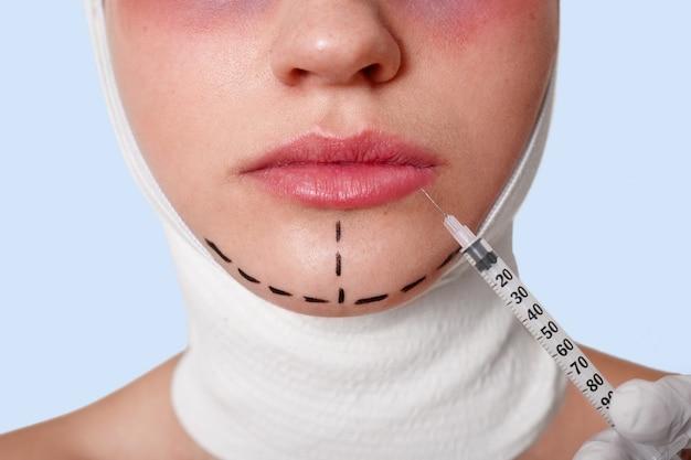 Metade do rosto da bela jovem caucasiana com linhas de perfuração no queixo antes da operação de cirurgia plástica