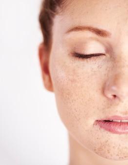 Metade do rosto de mulher com sardas