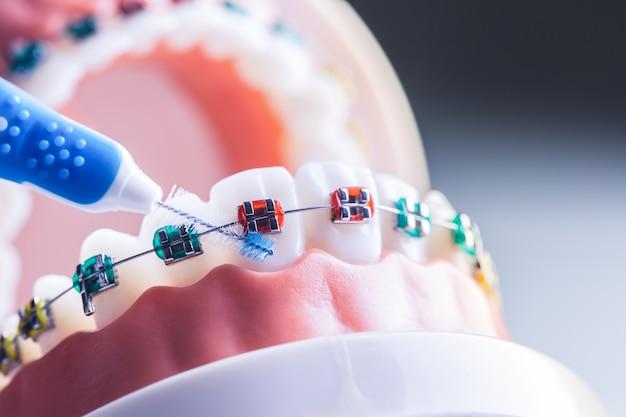Modelo de dente de aparelho dentário com escova de limpeza de dentes interdentários.