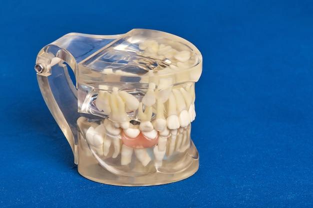 Modelo de dente humano com implantes