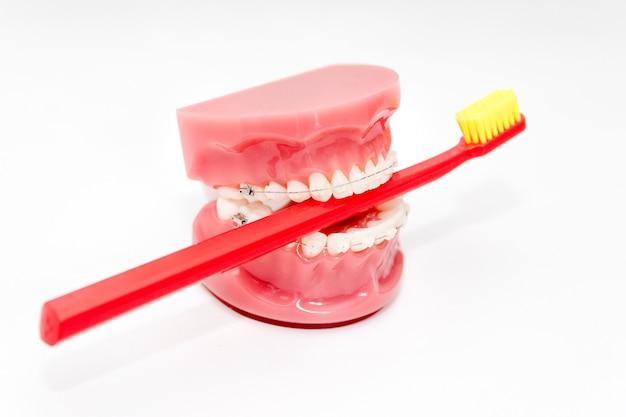 Modelo de dentes com aparelho em cerâmica e escova de dentes