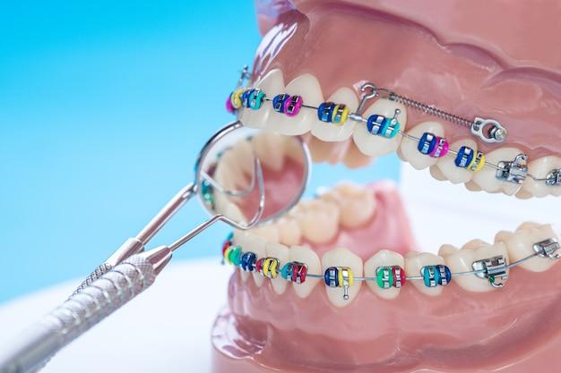Modelo de dentes de demonstração de variedades de suporte ortodôntico ou cinta