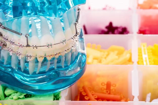Modelo de dentes de demonstração do suporte ortodôntico