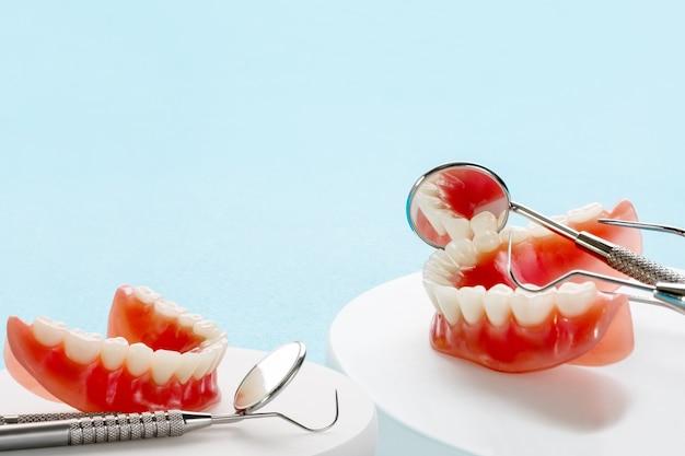 Modelo de dentes mostrando um modelo de ponte coroa de implante
