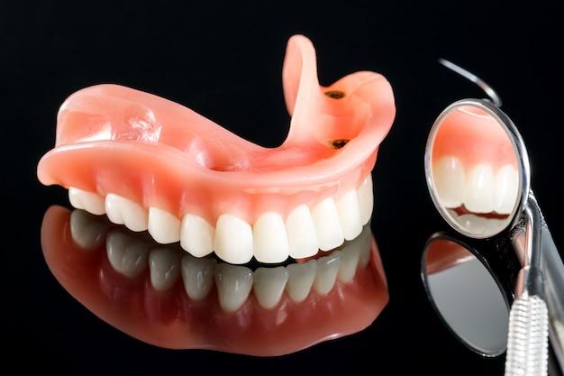 Modelo de dentes mostrando um modelo de ponte de coroa de implante / modelo de ensino de dentes para demonstração dentária.