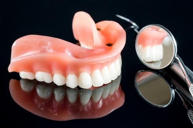 Modelo de dentes mostrando um modelo de ponte de coroa de implante.