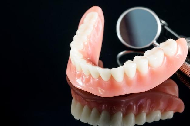 Modelo de dentes mostrando um modelo de ponte de coroa de implante