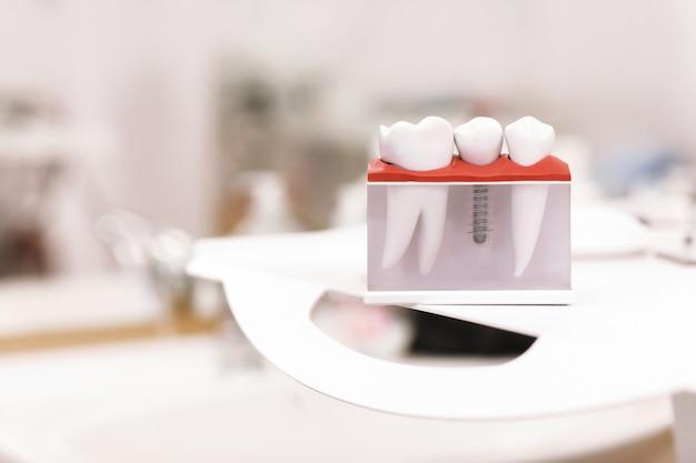 Modelo de ensino de dentes dentais de dentista mostrando parafuso de implante dentário de metal de titânio.