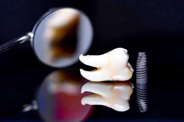Modelo de implante dentário em fundo preto e espelho dentário.