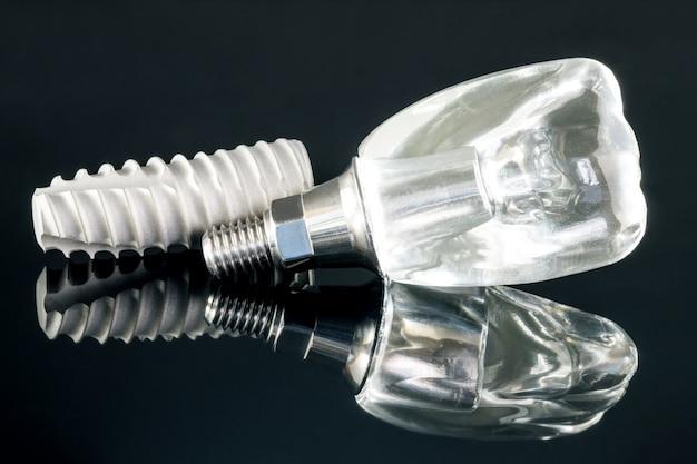 Modelo de implante dentário.
