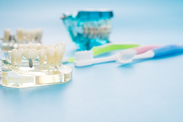 Modelo de implante e ortodontia para estudantes